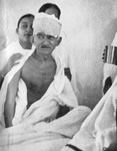 Gandhi just after ending his fast at Rajkot. March 7, 1939.